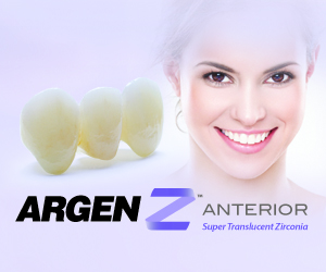 Argenz featured product
