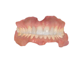 Clear Aligner Case Acceptance